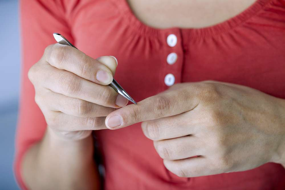 How to remove a splinter, the easy way