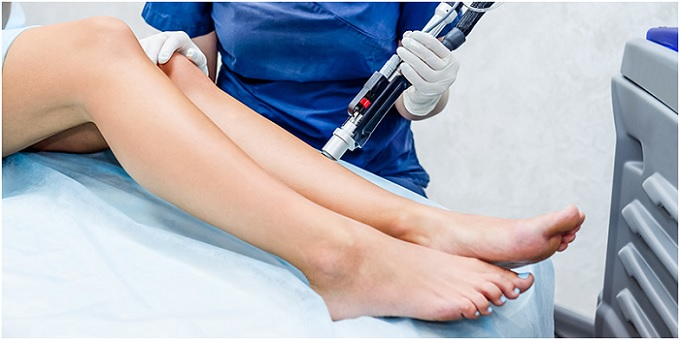 Things You Should Know About Laser IPL Hair Removal - Laser IPL Hair Removal